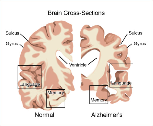 confirming alzehimers disease While most associate alzheimer's disease with its hallmark cognitive symptoms, such as worsening memory, the condition is also associated with a number of behavioral symptoms, such as increased depression and anxiety.